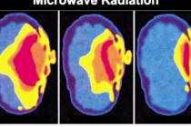 Bức xạ điện từ của sóng di động dễ ảnh hưởng đến trẻ em, hãy hạn chế cho bé dùng điện thoại