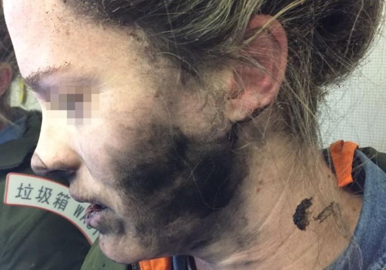 Một phụ nữ bị thương sau khi pin của tai nghe phát nổ trên một chuyến bay