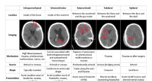 Ứng dụng Deep Learning có thể chẩn đoán chính xác tình trạng xuất huyết não